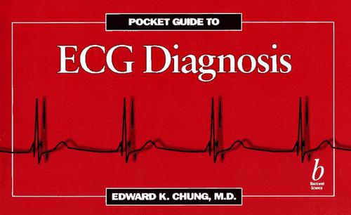 Pocketguide to ECG Diagnosis by Edward K. Chung